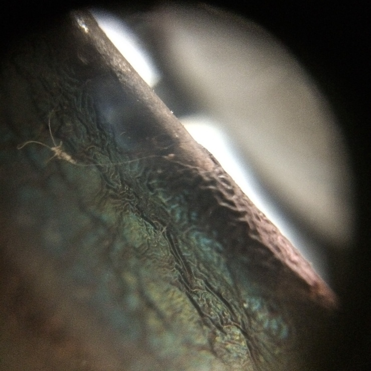 iPhone Macro Lens